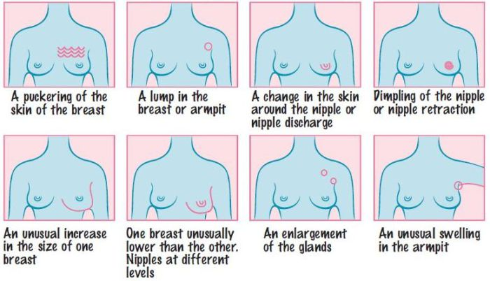 Apologise, unusual breast cancer pictures opinion